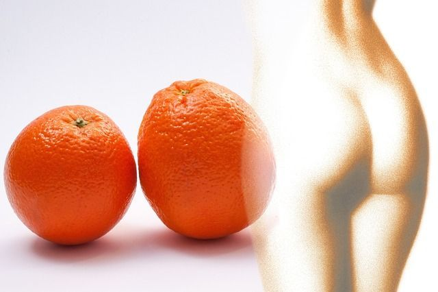 crema-anticelulitica-piel-de-naranja
